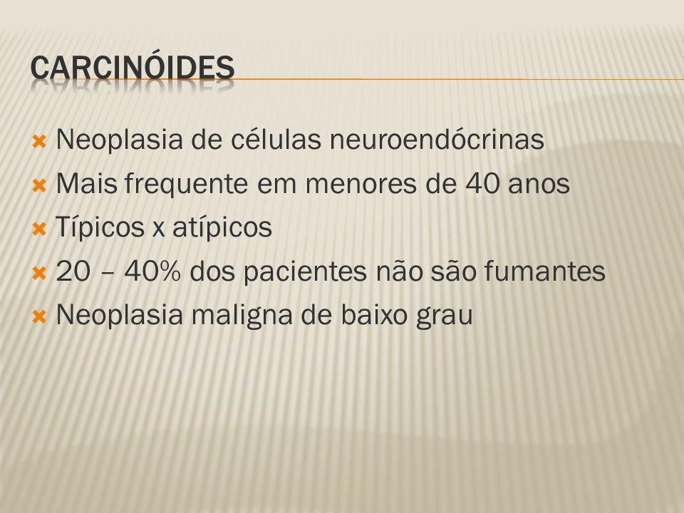 Carcinóides Neoplasia de células neuroendócrinas