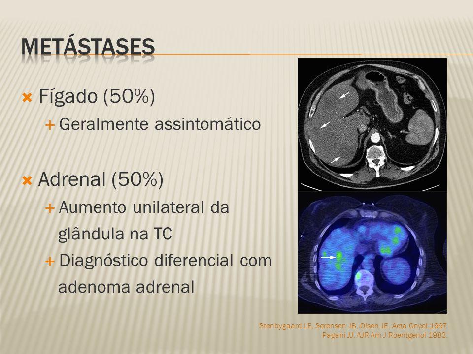 metástases Fígado (50%) Adrenal (50%) Geralmente assintomático