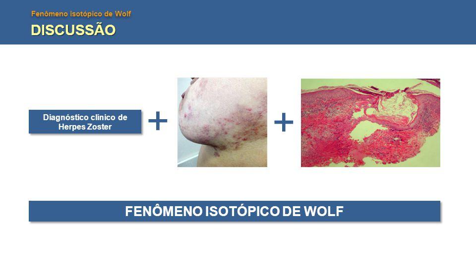 Diagnóstico clínico de Herpes Zoster FENÔMENO ISOTÓPICO DE WOLF