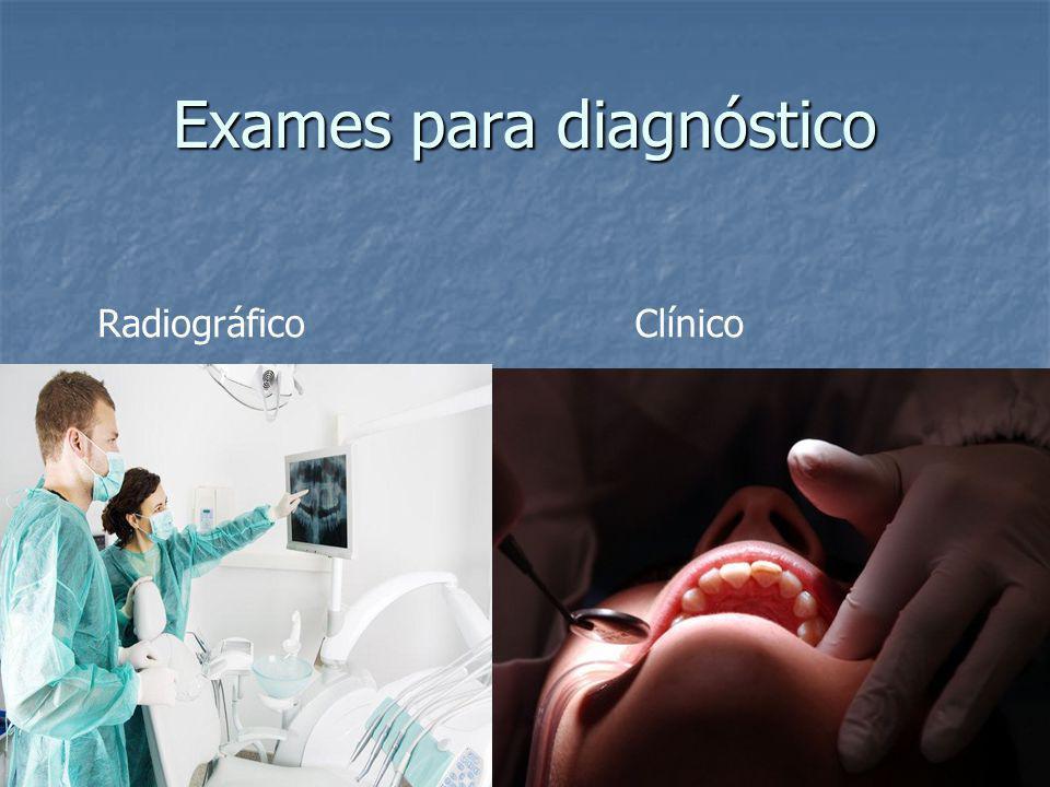 Exames para diagnóstico