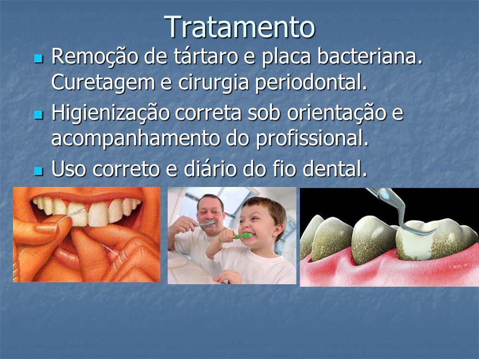 Tratamento Remoção de tártaro e placa bacteriana. Curetagem e cirurgia periodontal.