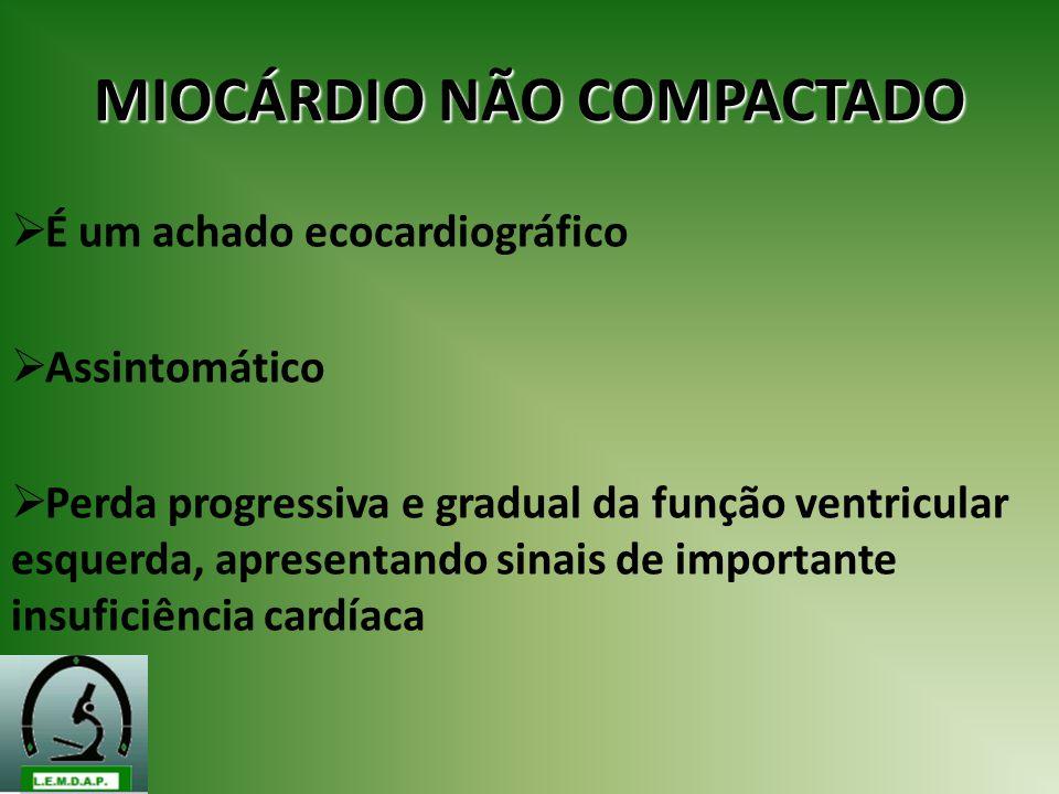 MIOCÁRDIO NÃO COMPACTADO