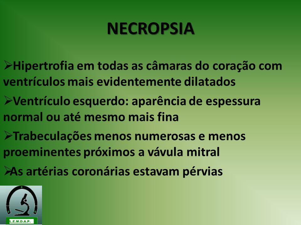 NECROPSIA Hipertrofia em todas as câmaras do coração com ventrículos mais evidentemente dilatados.