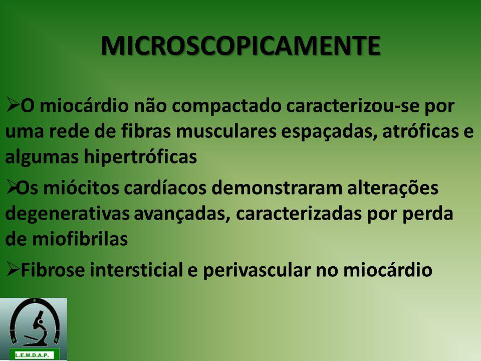MICROSCOPICAMENTE O miocárdio não compactado caracterizou-se por uma rede de fibras musculares espaçadas, atróficas e algumas hipertróficas.