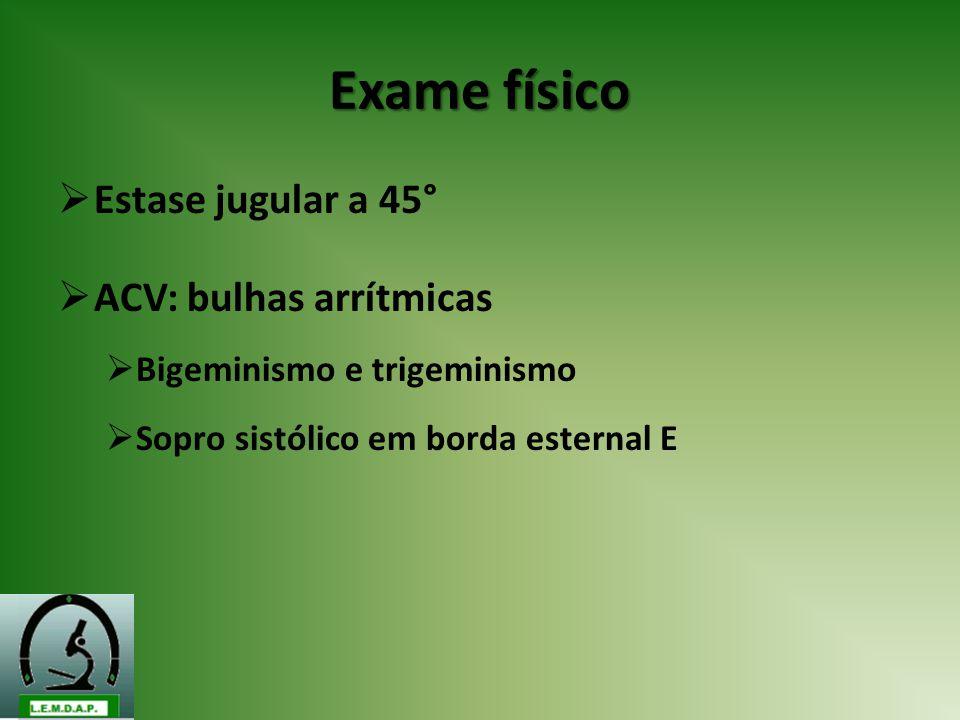 Exame físico Estase jugular a 45° ACV: bulhas arrítmicas