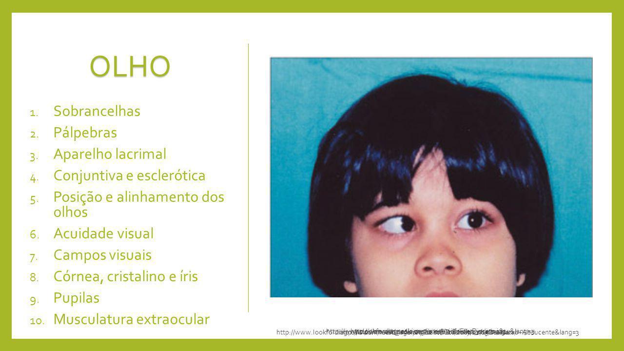 OLHO Sobrancelhas Pálpebras Aparelho lacrimal Conjuntiva e esclerótica
