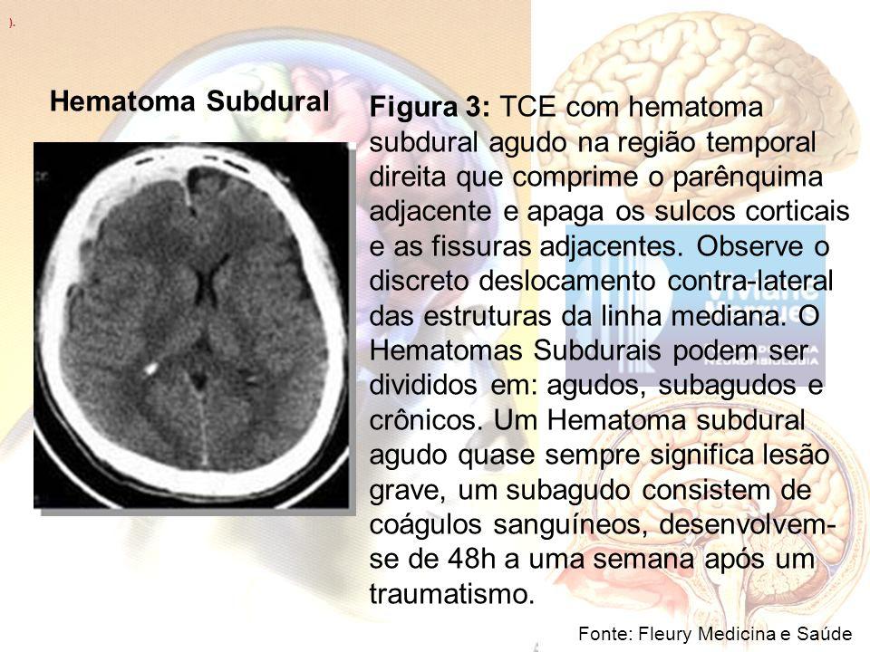 ). Hematoma Subdural.