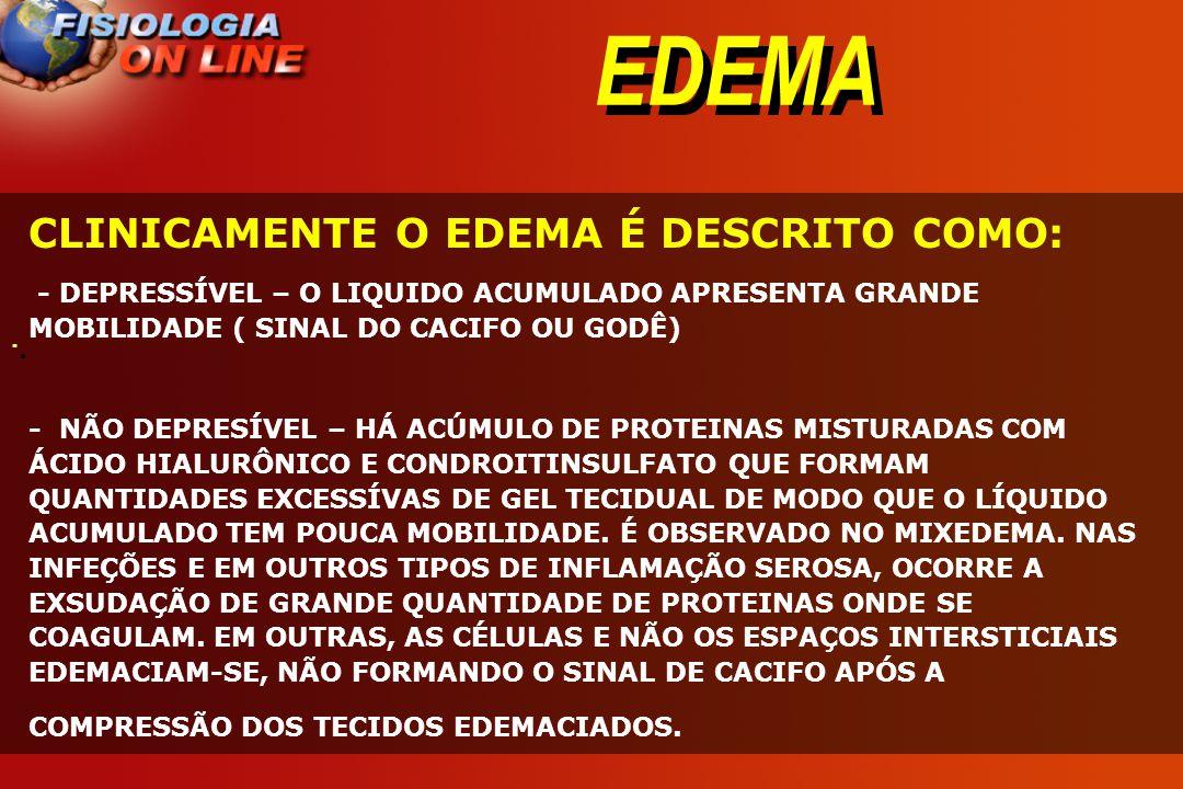 EDEMA CLINICAMENTE O EDEMA É DESCRITO COMO: ·