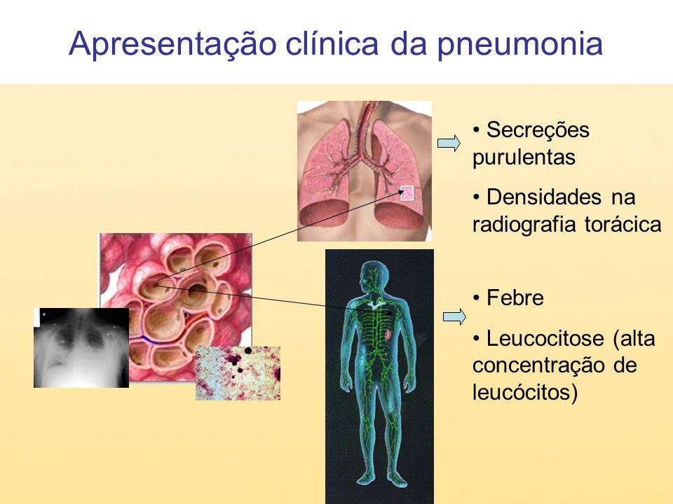 Apresentação clínica da pneumonia