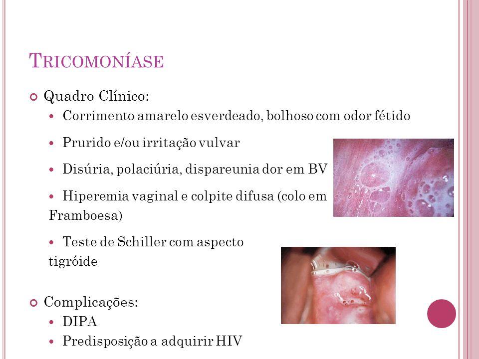 Tricomoníase Quadro Clínico: Complicações: