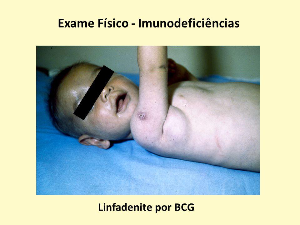 Exame Físico - Imunodeficiências