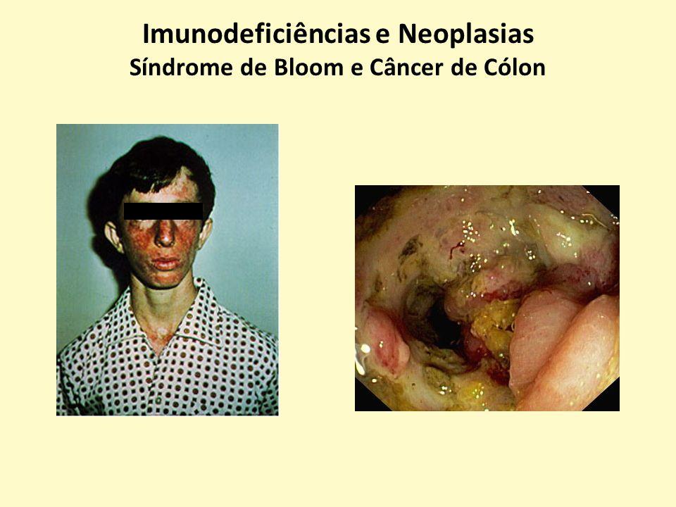 Imunodeficiências e Neoplasias Síndrome de Bloom e Câncer de Cólon