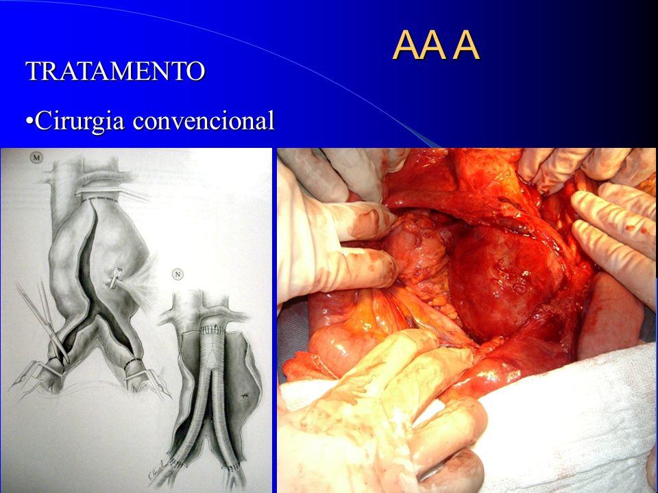 AA A TRATAMENTO Cirurgia convencional