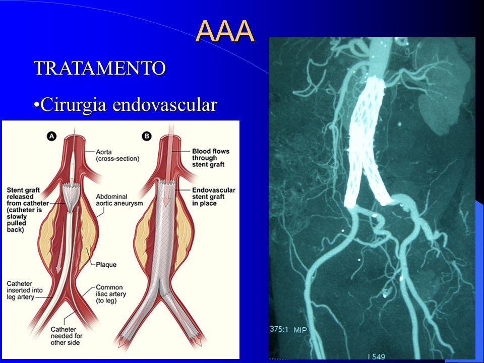 AAA TRATAMENTO Cirurgia endovascular