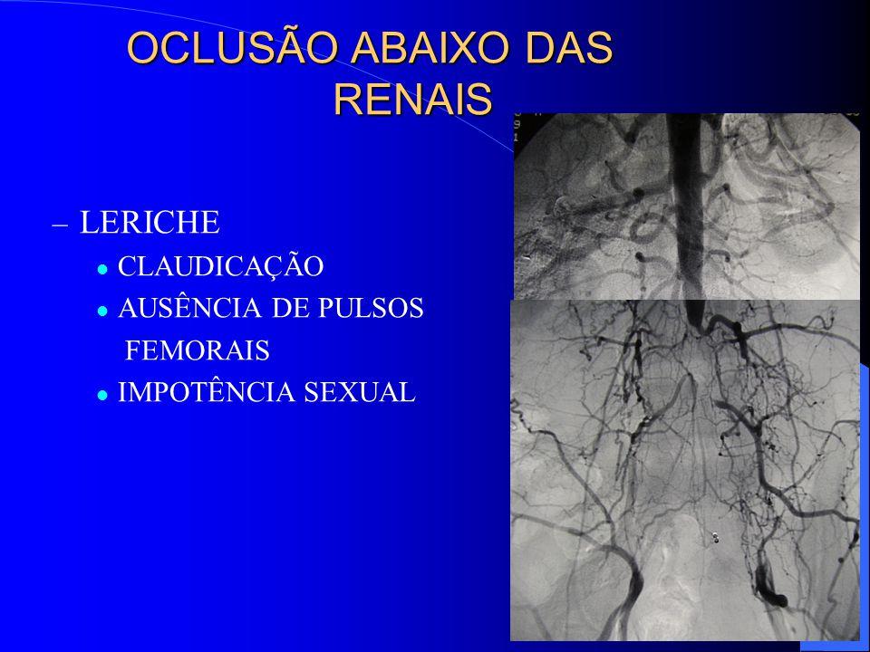 OCLUSÃO ABAIXO DAS RENAIS