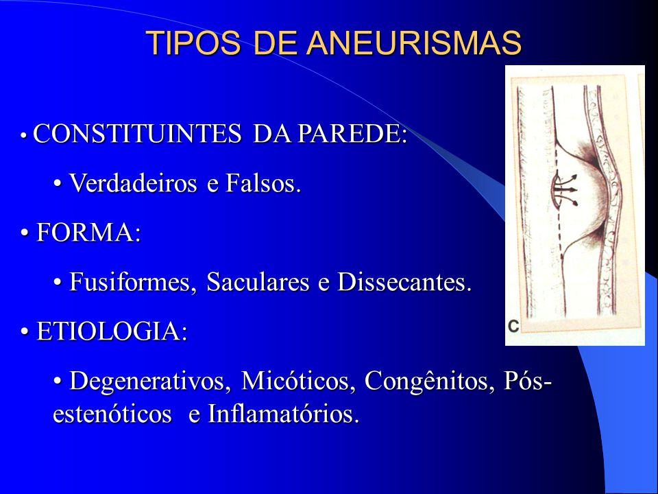 TIPOS DE ANEURISMAS Verdadeiros e Falsos. FORMA: