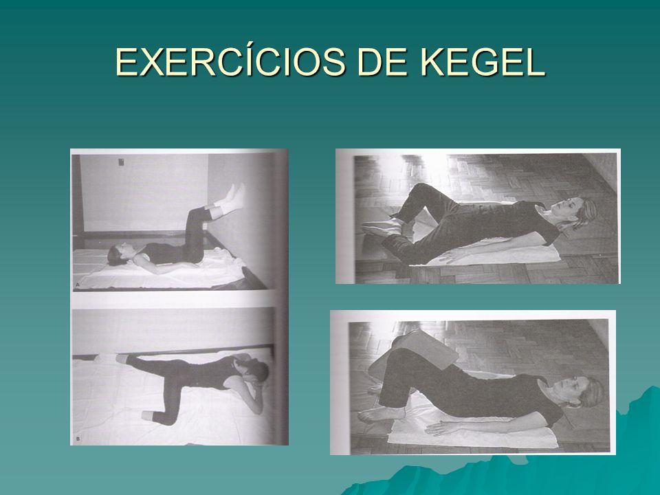 EXERCÍCIOS DE KEGEL