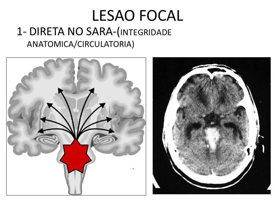 LESAO FOCAL 1- DIRETA NO SARA-(INTEGRIDADE ANATOMICA/CIRCULATORIA)