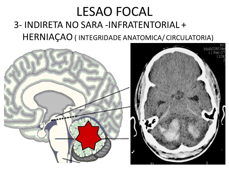LESAO FOCAL 3- INDIRETA NO SARA -INFRATENTORIAL + HERNIAÇAO ( INTEGRIDADE ANATOMICA/ CIRCULATORIA)