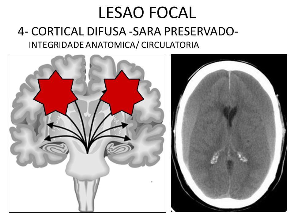 LESAO FOCAL 4- CORTICAL DIFUSA -SARA PRESERVADO- INTEGRIDADE ANATOMICA/ CIRCULATORIA