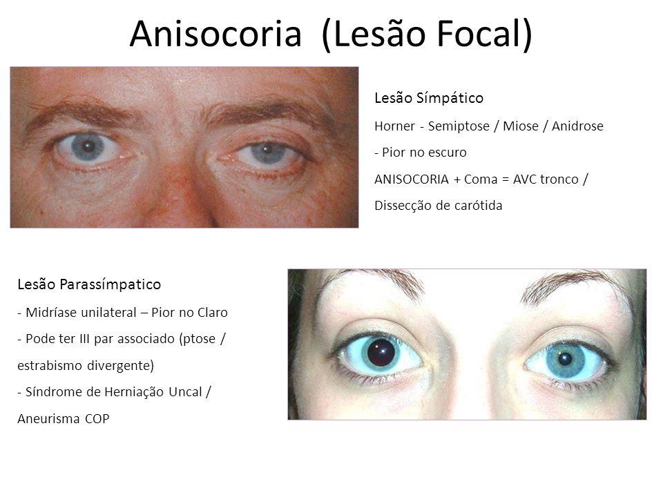 Anisocoria (Lesão Focal)