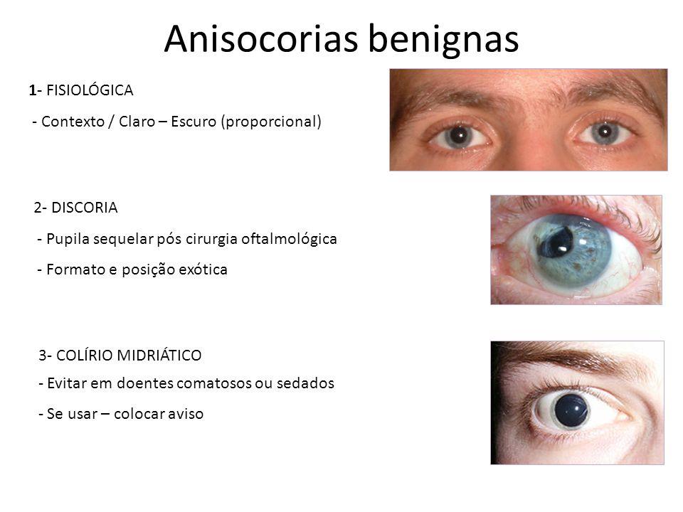 Anisocorias benignas 1- FISIOLÓGICA