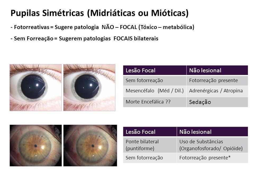Pupilas Simétricas (Midriáticas ou Mióticas)
