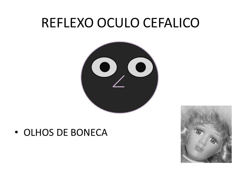REFLEXO OCULO CEFALICO