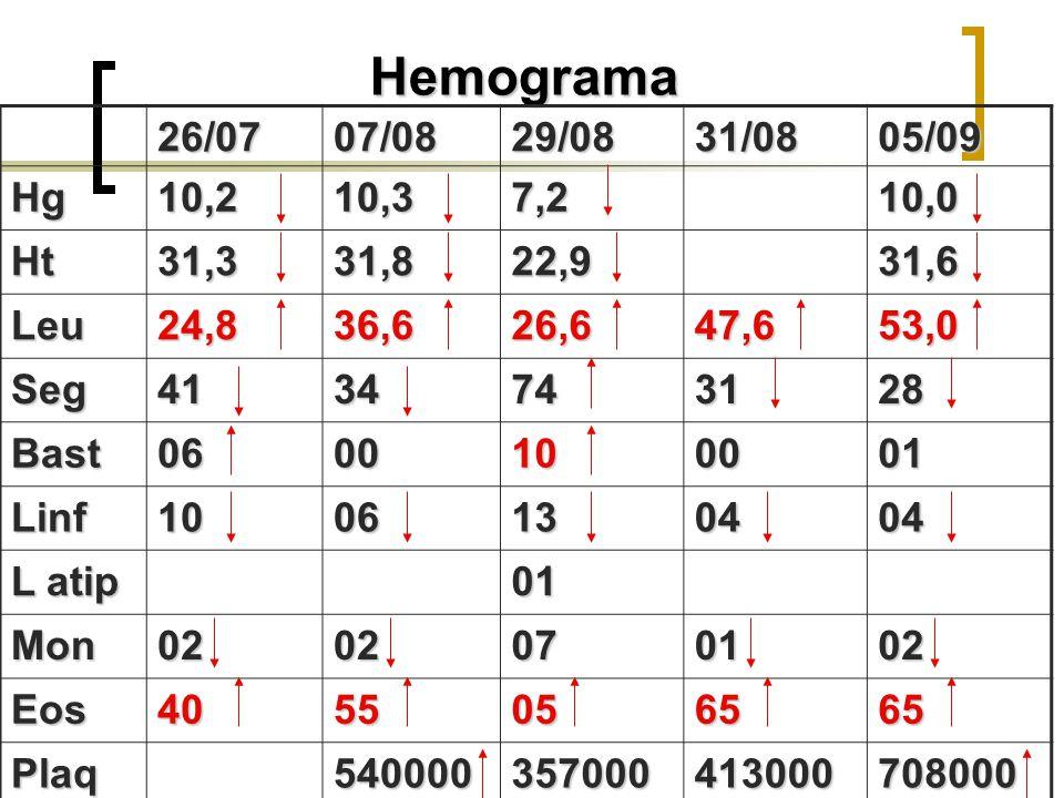 Hemograma 26/07. 07/08. 29/08. 31/08. 05/09. Hg. 10,2. 10,3. 7,2. 10,0. Ht. 31,3. 31,8.
