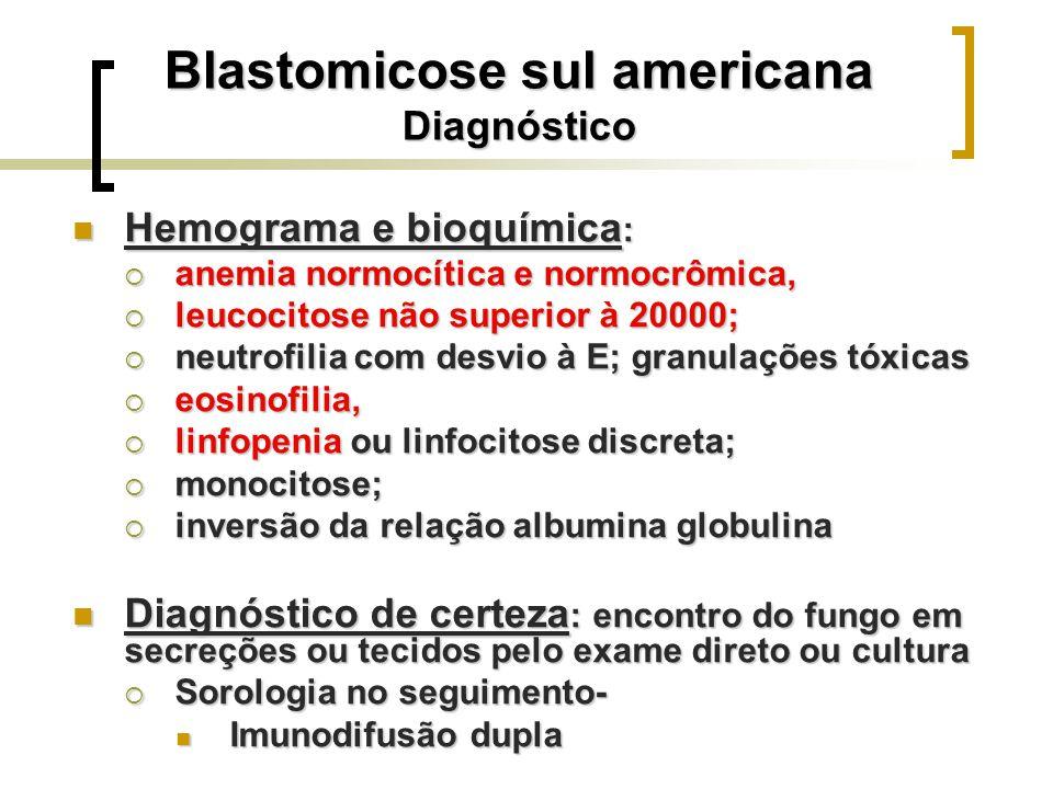 Blastomicose sul americana Diagnóstico