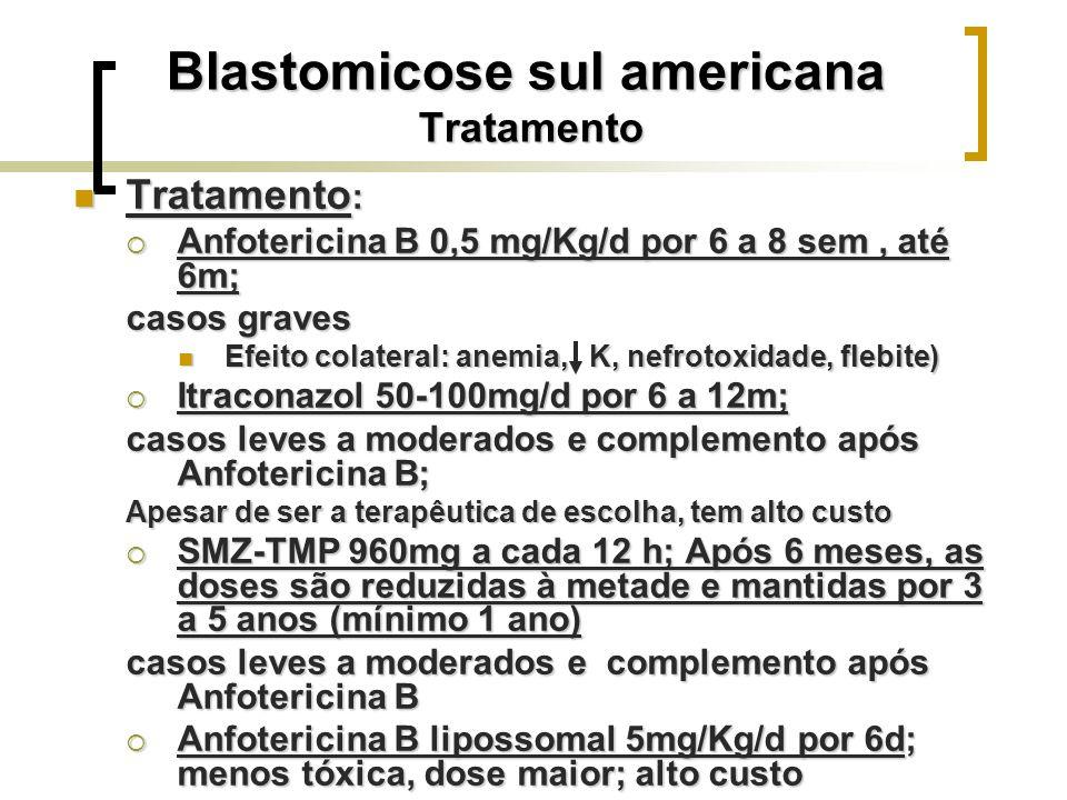 Blastomicose sul americana Tratamento