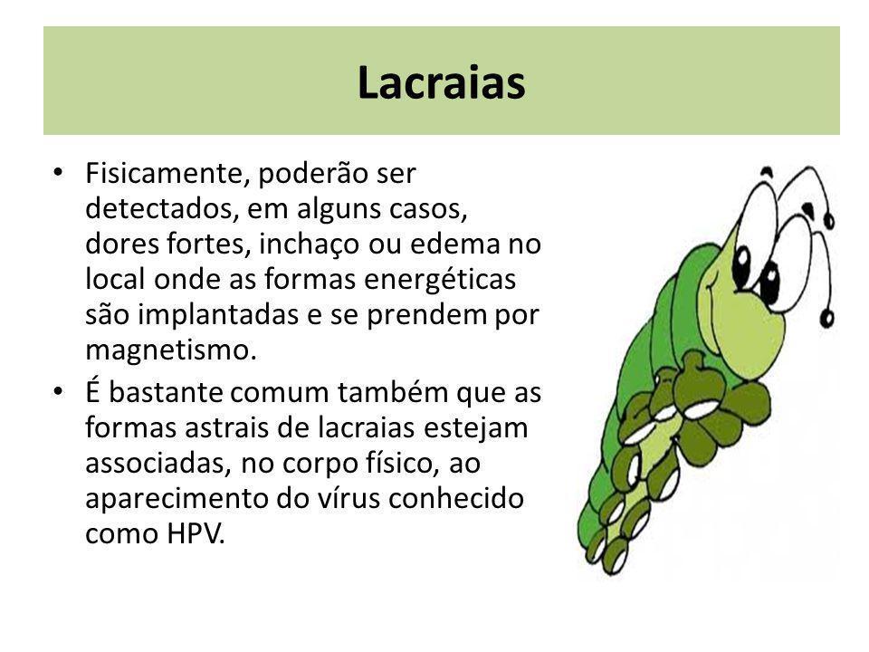 Pode se identificar Lacraias