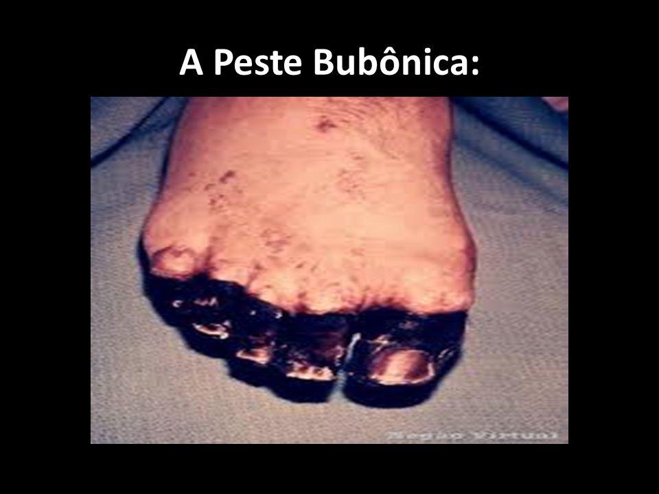 A Peste Bubônica: