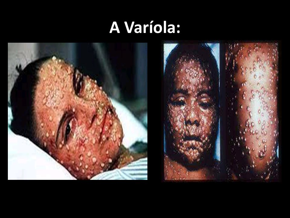 A Varíola:
