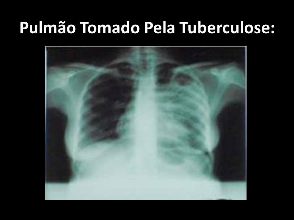 Pulmão Tomado Pela Tuberculose: