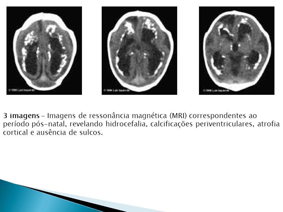 3 imagens - Imagens de ressonância magnética (MRI) correspondentes ao período pós-natal, revelando hidrocefalia, calcificações periventriculares, atrofia cortical e ausência de sulcos.
