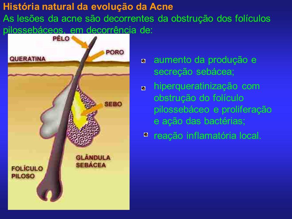 História natural da evolução da Acne