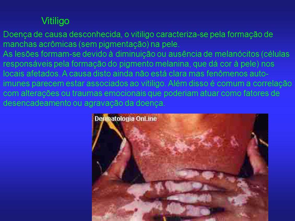 Vitiligo Doença de causa desconhecida, o vitiligo caracteriza-se pela formação de manchas acrômicas (sem pigmentação) na pele.