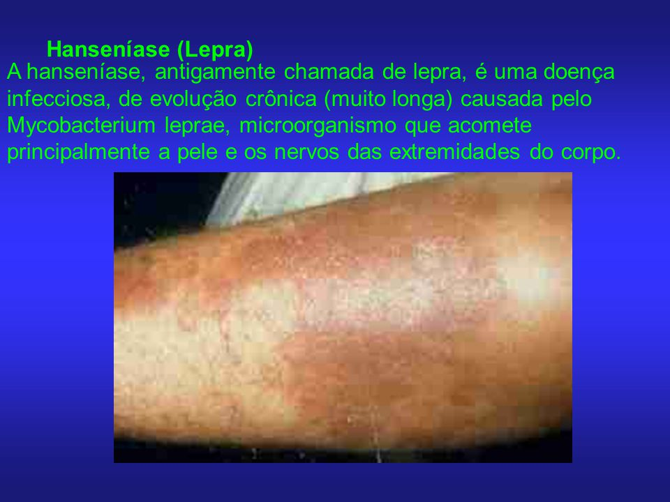 Hanseníase (Lepra)