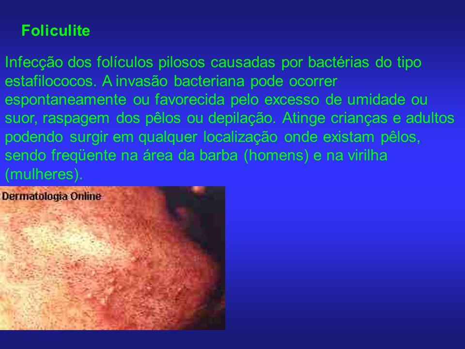 Foliculite