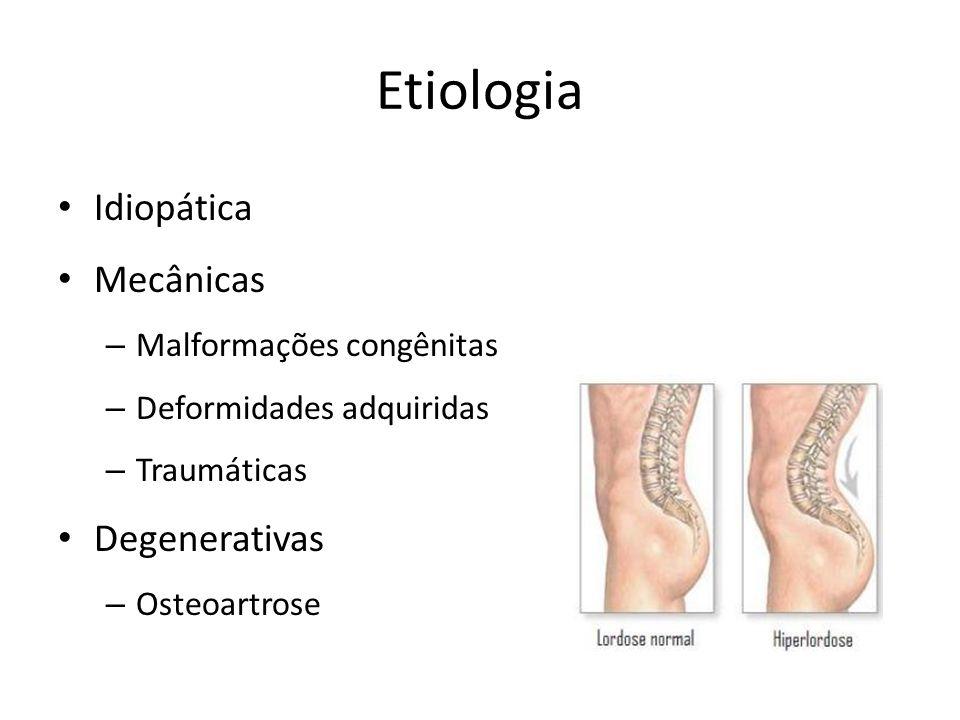 Etiologia Idiopática Mecânicas Degenerativas Malformações congênitas