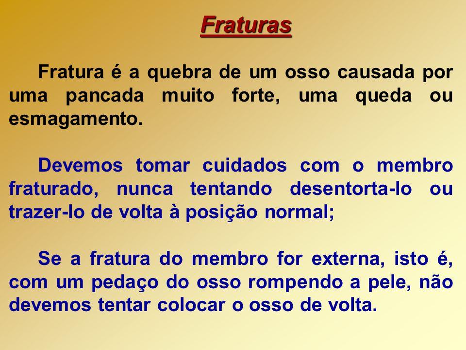 Fraturas Fratura é a quebra de um osso causada por uma pancada muito forte, uma queda ou esmagamento.