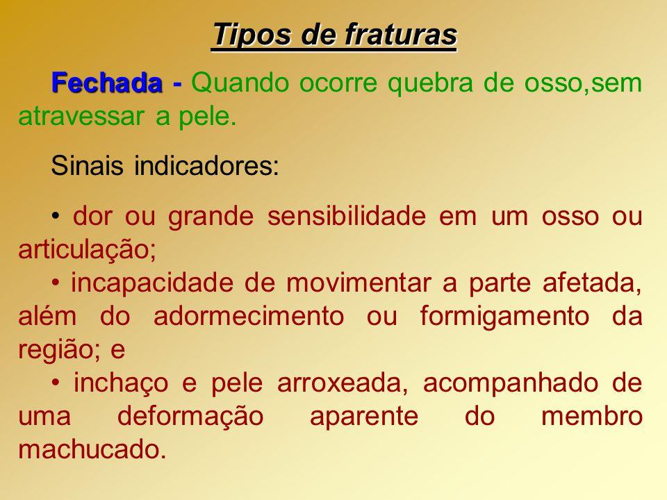 Tipos de fraturas Fechada - Quando ocorre quebra de osso,sem atravessar a pele. Sinais indicadores: