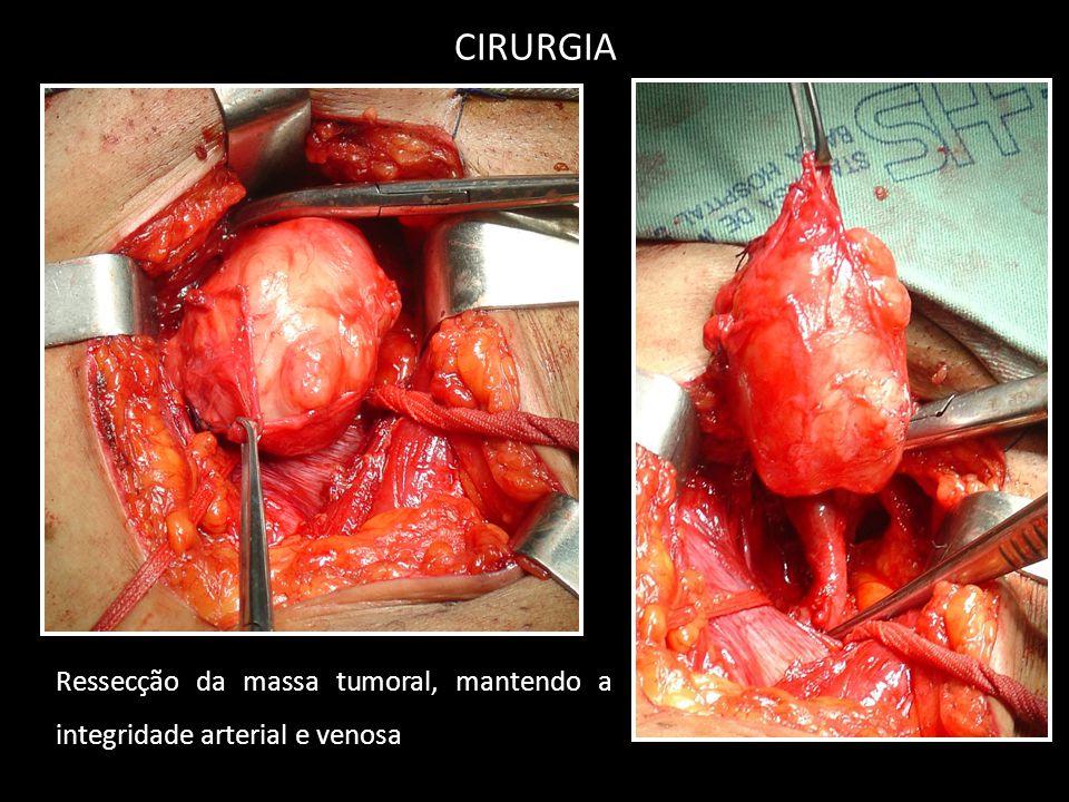 CIRURGIA Ressecção da massa tumoral, mantendo a integridade arterial e venosa