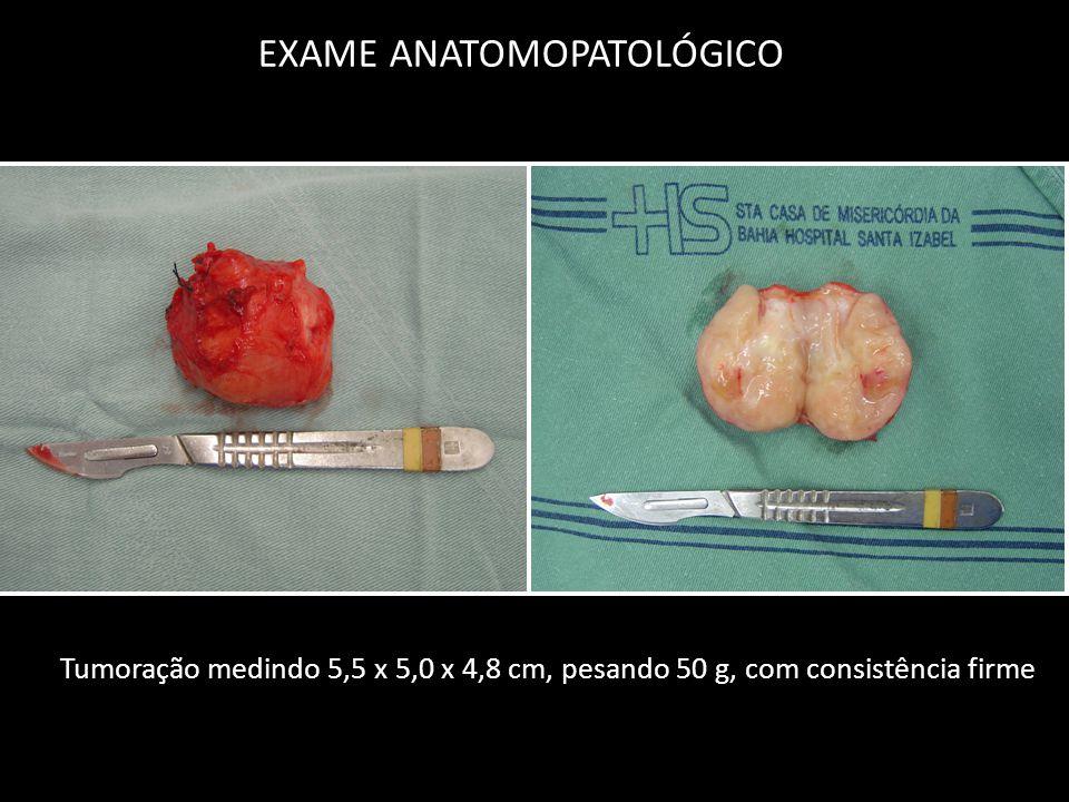 EXAME ANATOMOPATOLÓGICO