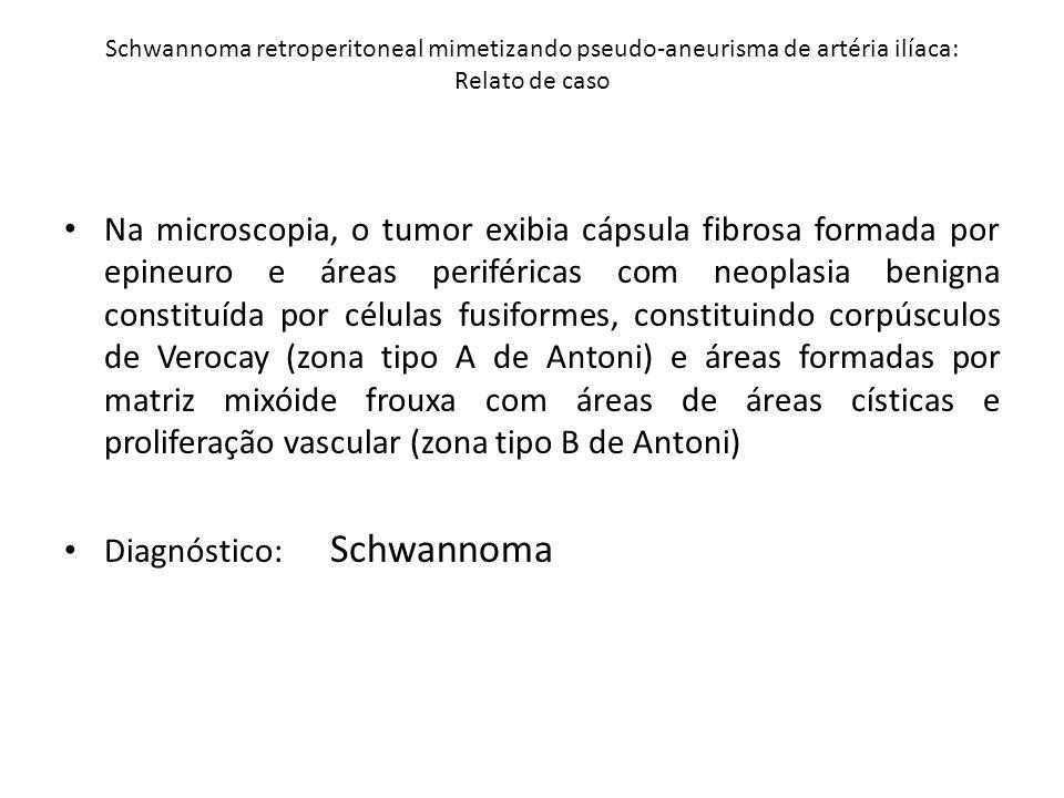 Diagnóstico: Schwannoma