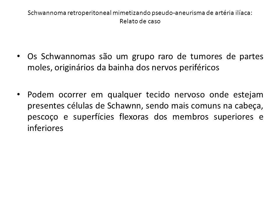 Schwannoma retroperitoneal mimetizando pseudo-aneurisma de artéria ilíaca: Relato de caso