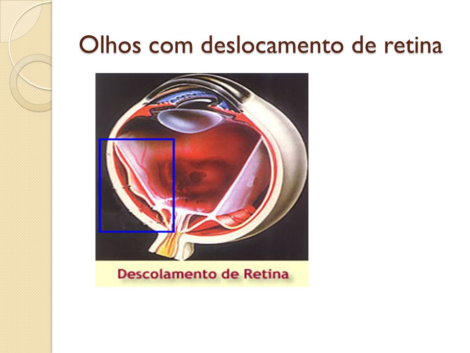 Olhos com deslocamento de retina