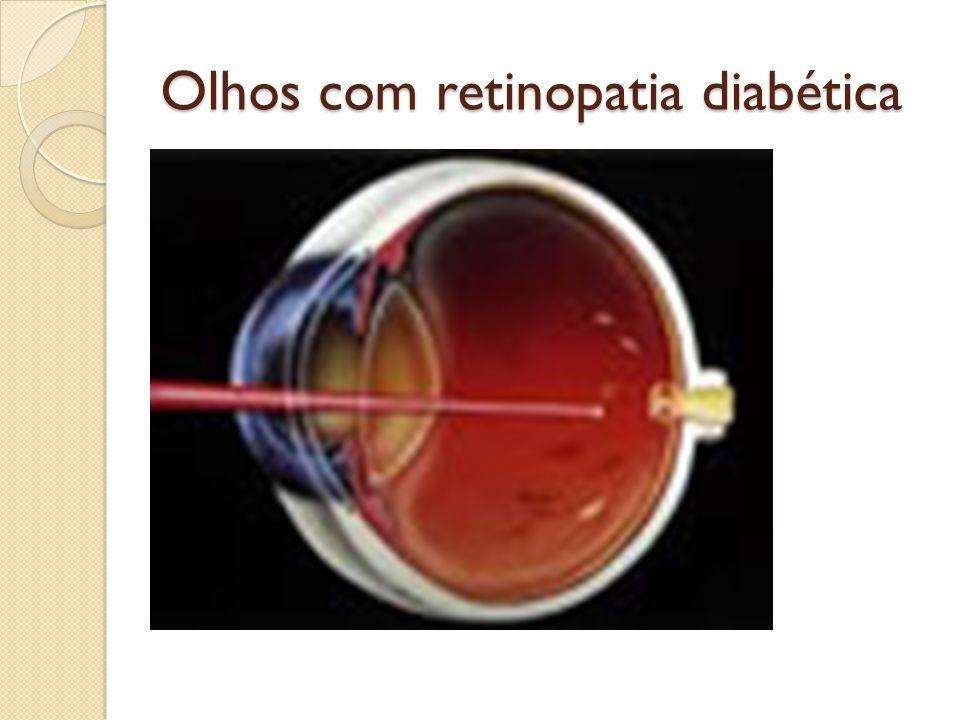 Olhos com retinopatia diabética