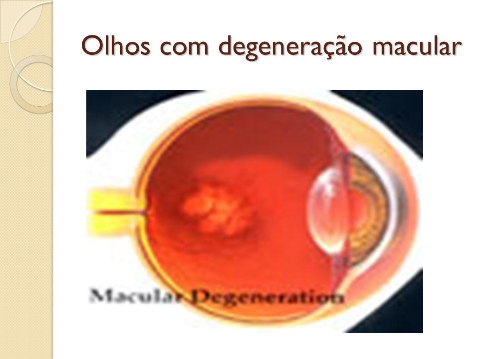 Olhos com degeneração macular